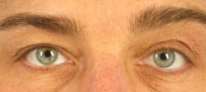Dr. brett kotlus cosmetic oculoplastic eyelid asymmetry