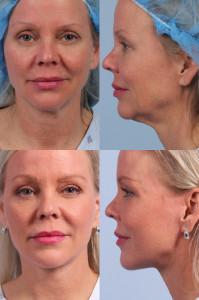 Dr. brett kotlus cosmetic oculoplastic ny neck lift