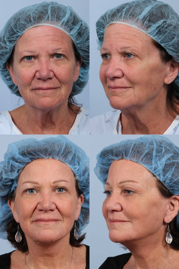 browlift facelift nyc