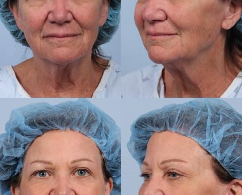 Dr. brett kotlus cosmetic oculoplastic facelift
