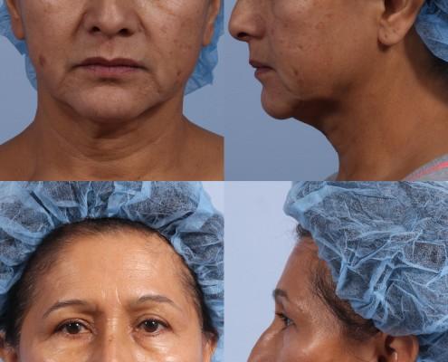 Dr. brett kotlus cosmetic oculoplastic nyc neck lift