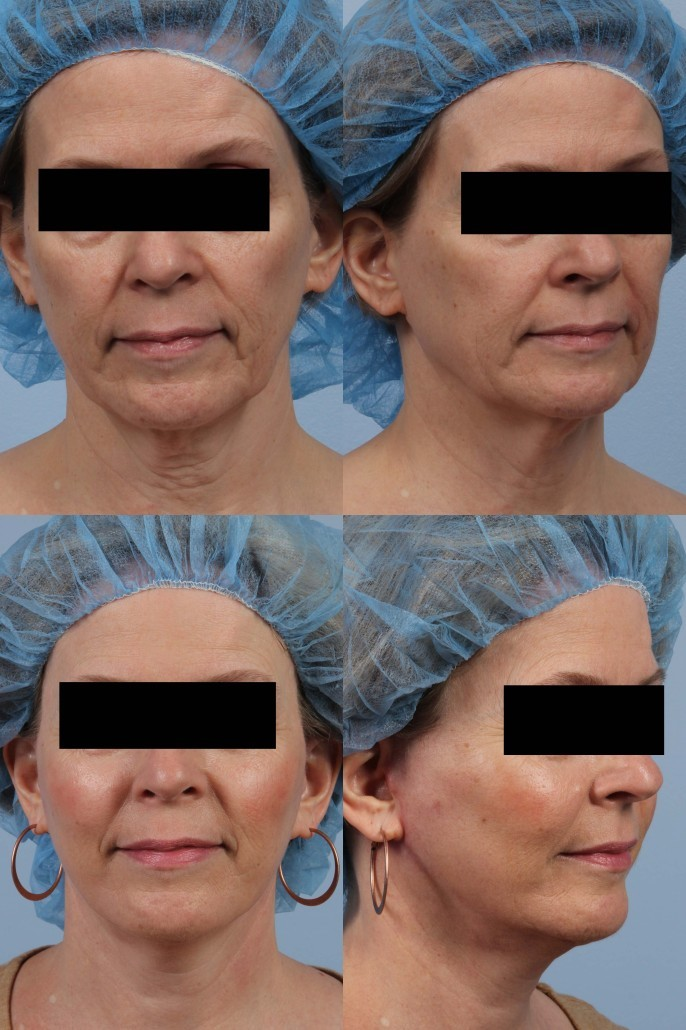 nyc fat grafting facelift