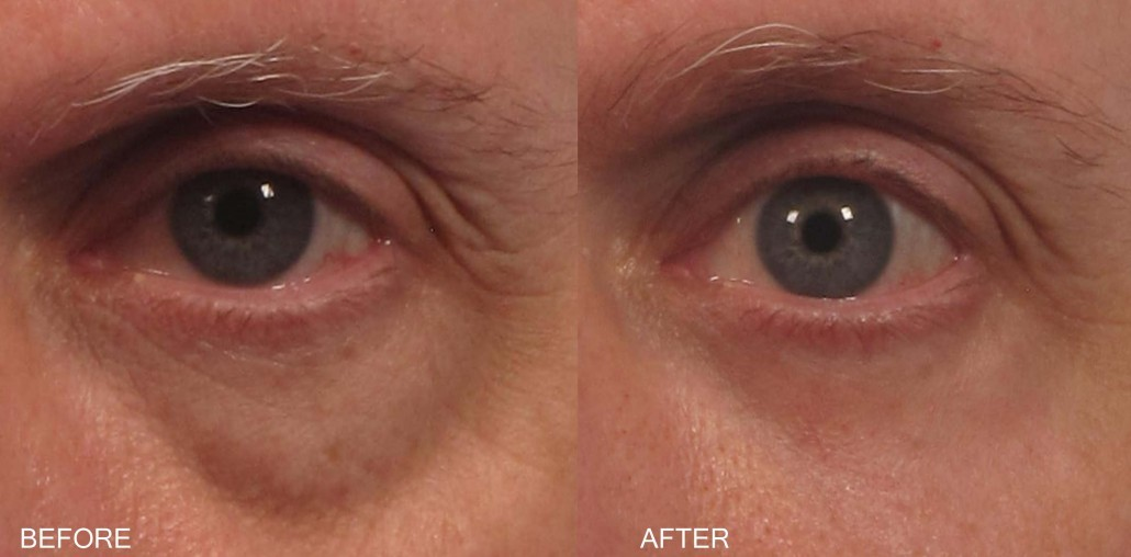 Dr. brett kotlus cosmetic oculoplastic fat injection
