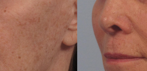 Dr. brett kotlus cosmetic oculoplastic cheek fat transfer