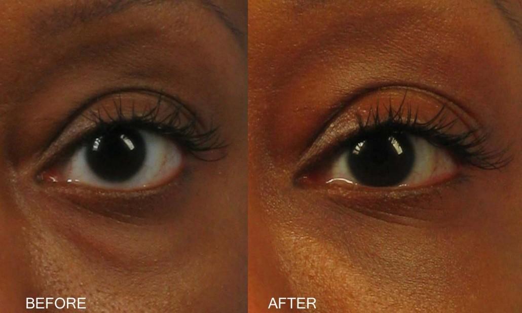 Dr. brett kotlus cosmetic oculoplastic eyelid transposition