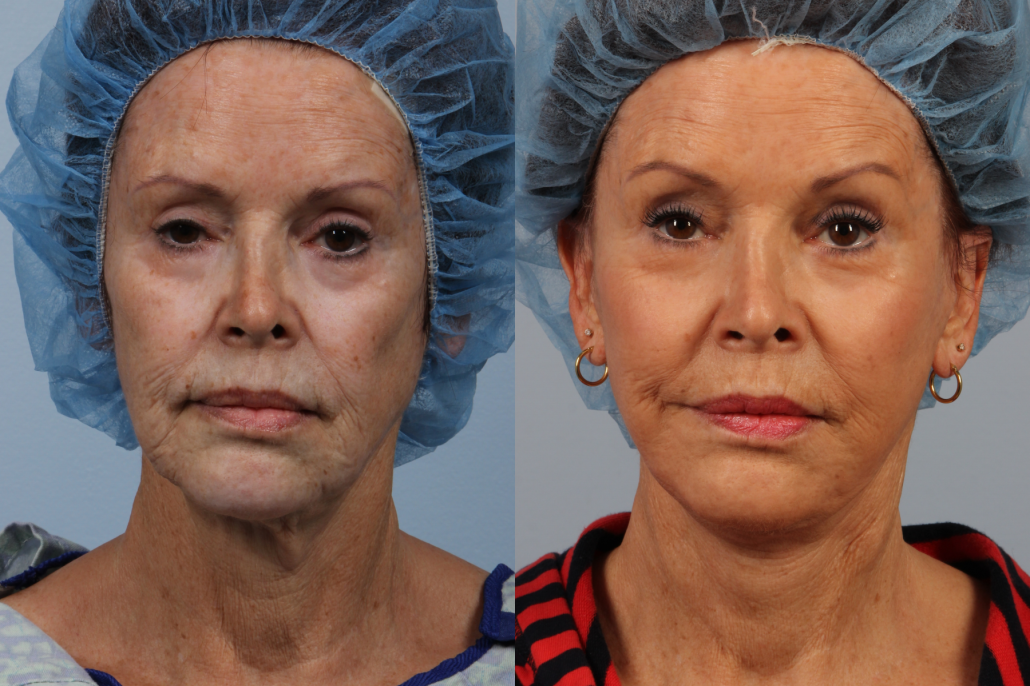 nyc facelift surgeons