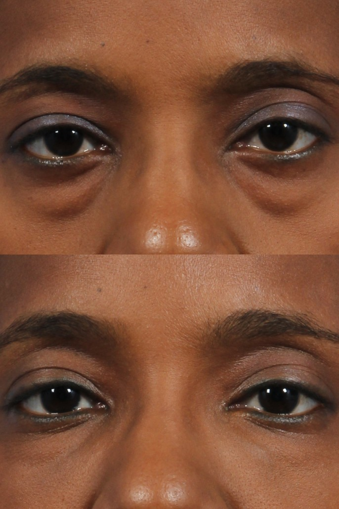 Under Eye Makeup Brush: Style Guru: Fashion, Glitz