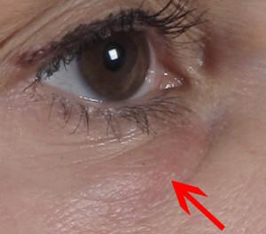 Dr. brett kotlus cosmetic oculoplastic filler