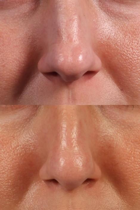 nasal tip filler