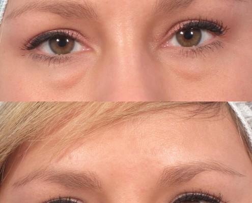 dr. brett kotlus eyelid bags non-surgical
