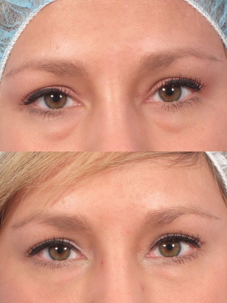 cannula under eye filler