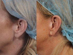 Dr. brett kotlus cosmetic oculoplastic nyc facelift scars