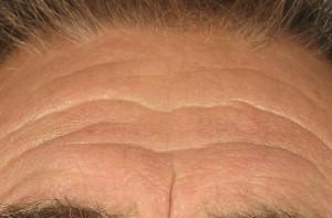 Dr. brett kotlus cosmetic oculoplastic forehead lines