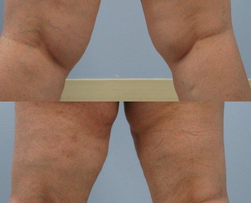 Dr. brett kotlus cosmetic oculoplastic inner knee lipo westchester