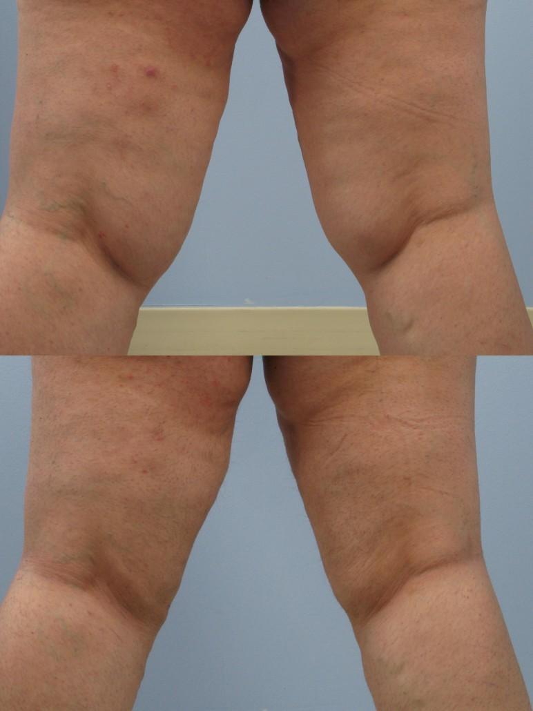 knee liposuction