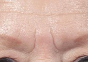Dr. brett kotlus cosmetic oculoplastic glabella furrow