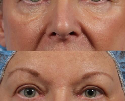 Dr. brett kotlus cosmetic oculoplastic upper eyelids female