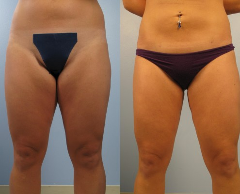 Dr. brett kotlus cosmetic oculoplastic thigh lipo