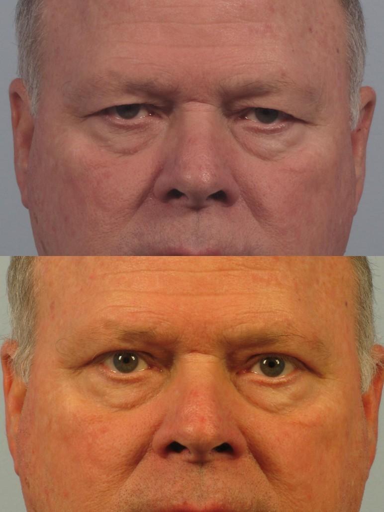 Dr. brett kotlus cosmetic oculoplastic upper blepharoplasty ny male