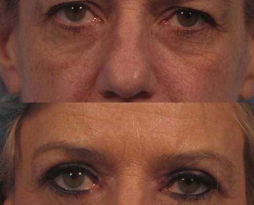 Dr. brett kotlus cosmetic oculoplastic blepharoplasty ny