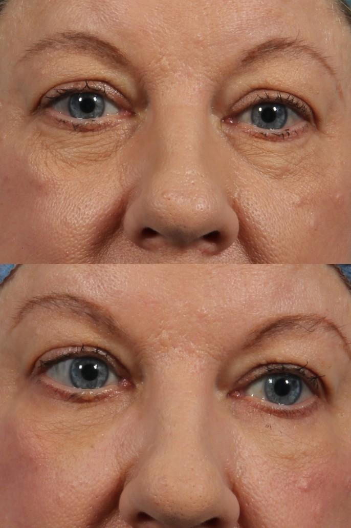 dr. brett kotlus eye lift bags
