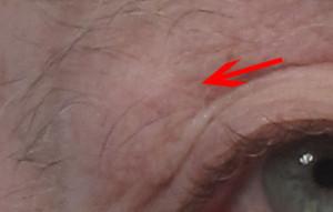 Dr. brett kotlus cosmetic oculoplastic lacrimal prolapse