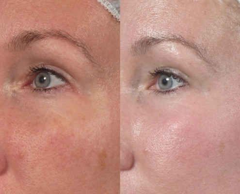 co2 fractional laser ny