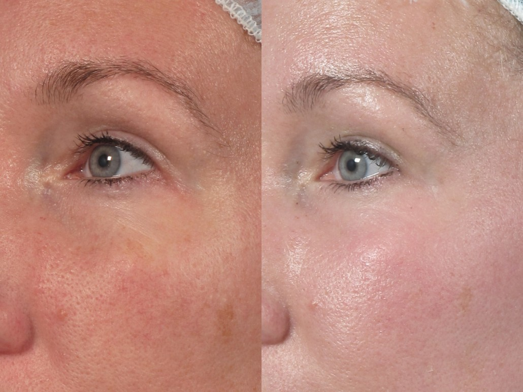 nyc skin laser resurfacing