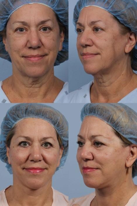 Dr. brett kotlus cosmetic oculoplastic necklift surgeon ny