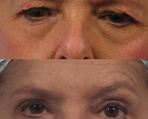 Dr. brett kotlus cosmetic oculoplastic blepharoplasty new york