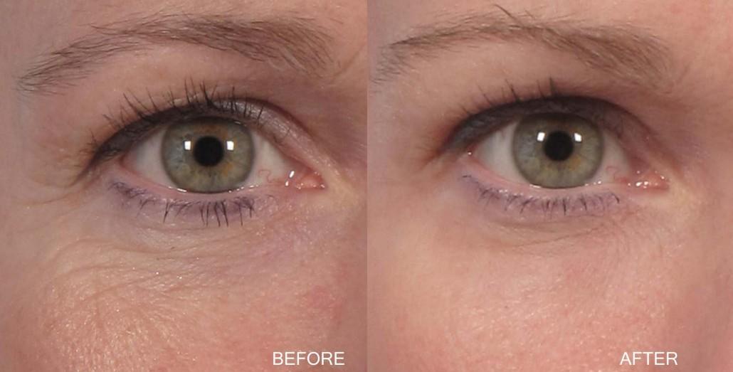 Dr. brett kotlus cosmetic oculoplastic lid resurfacing