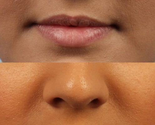 Dr. brett kotlus cosmetic oculoplastic lip fillers