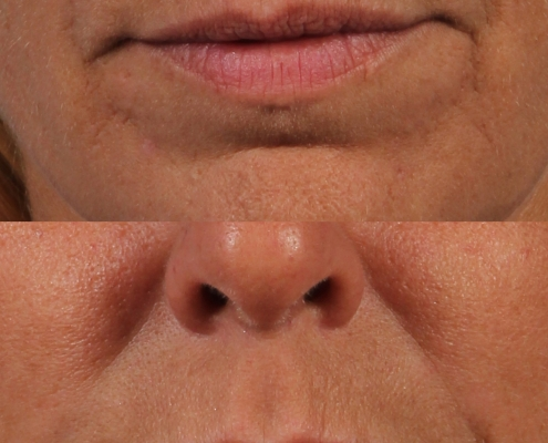 dr. brett kotlus juvederm lip enhancement
