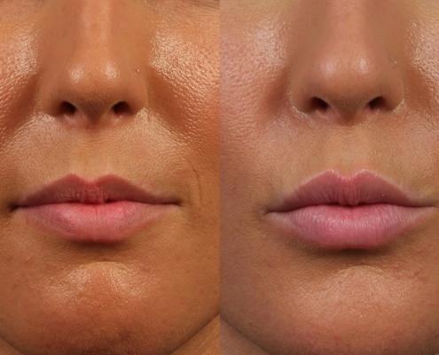 dr. brett kotlus juvederm lips