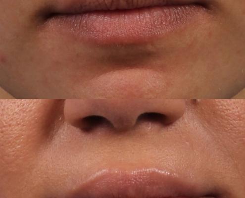 dr. brett kotlus filler lips nyc plastic