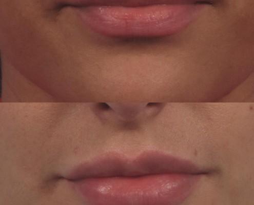 Dr. brett kotlus cosmetic oculoplastic lip plumping