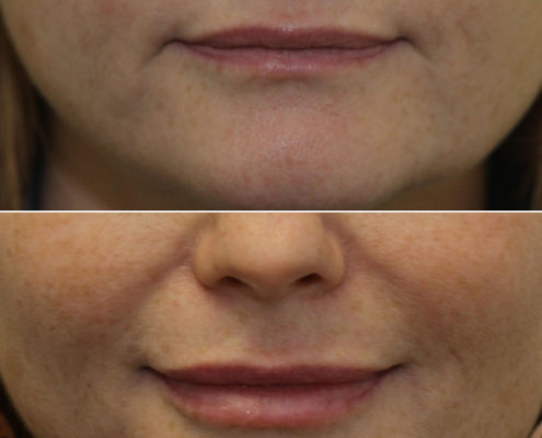 dr. brett kotlus lip enhancement