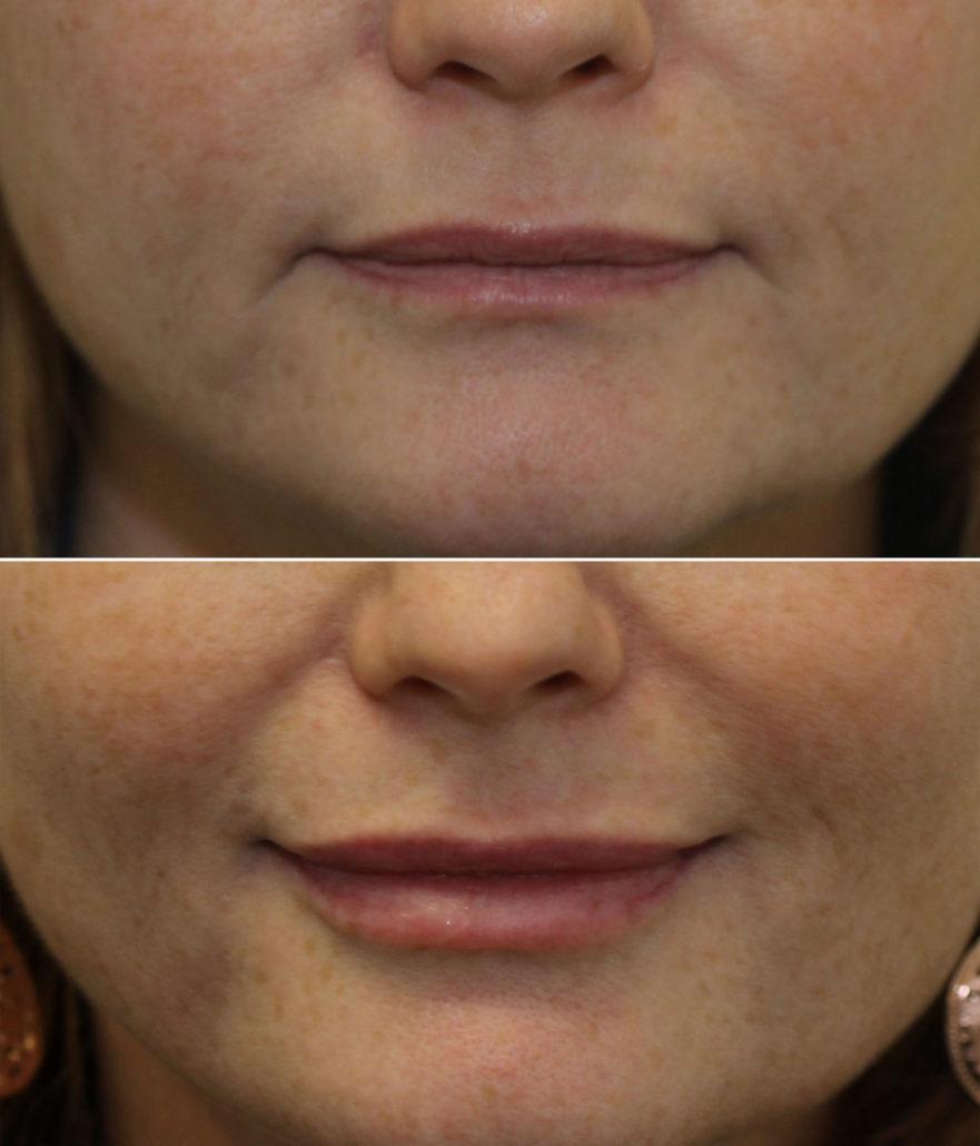 Lip Enhancement | Dr  Brett Kotlus, Cosmetic Oculoplastic