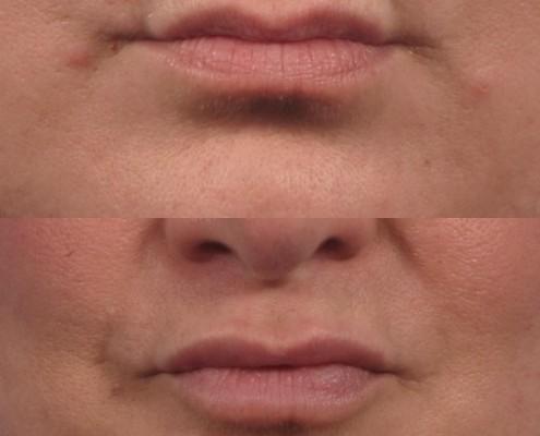 Dr. brett kotlus cosmetic oculoplastic lip fill