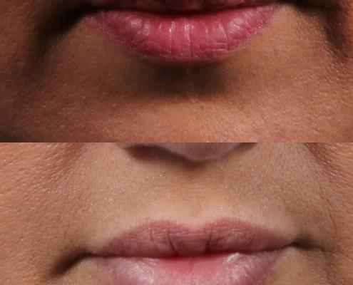 dr. brett kotlus lips juvederm