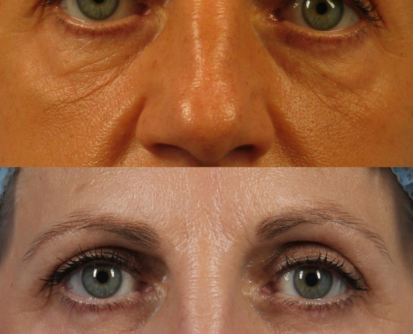 dr. brett kotlus eye lift ny