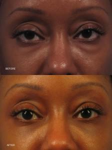 Dr. brett kotlus cosmetic oculoplastic lower eyelid lift
