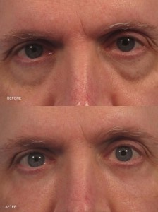 Dr. brett kotlus cosmetic oculoplastic fat grafting eyes