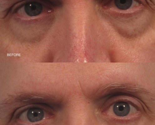 dr. brett kotlus fat transfer eyelid new york