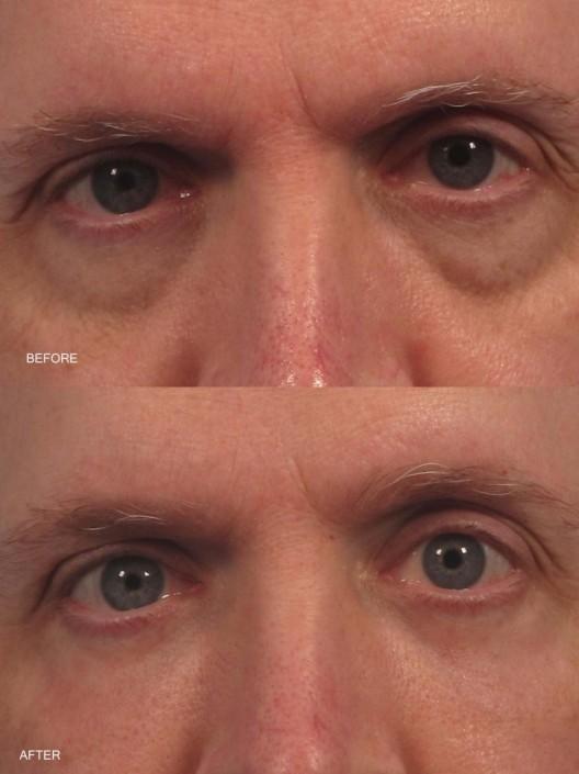 dr. brett kotlus fat transfer eyelid new york