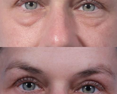 dr. brett kotlus lift kotlus eyelid