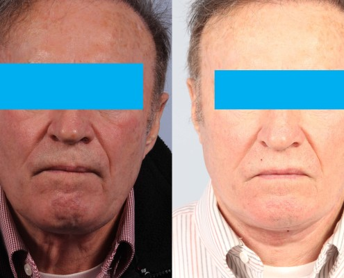 male neck lift nyc