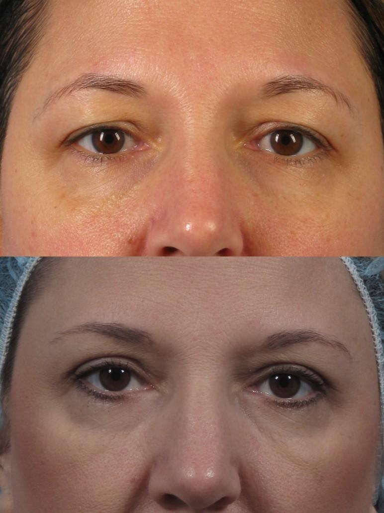 Dr. brett kotlus cosmetic oculoplastic blepharoplasty