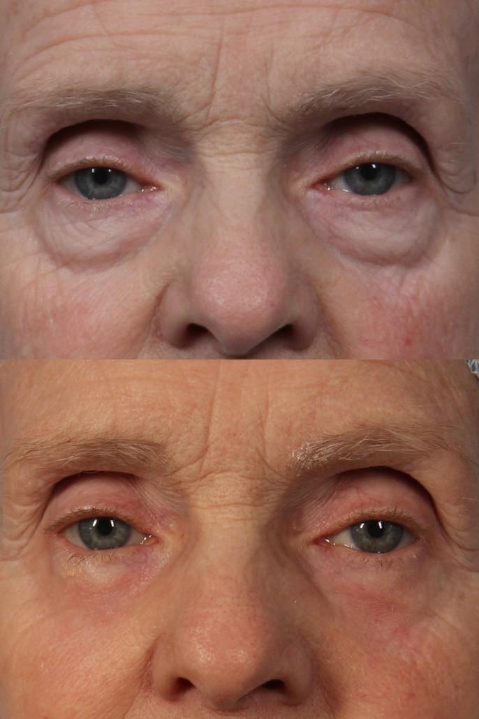 dr. brett kotlus transconjunctival bleph ny