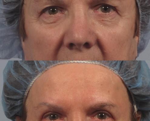 Dr. brett kotlus cosmetic oculoplastic eyelid lift
